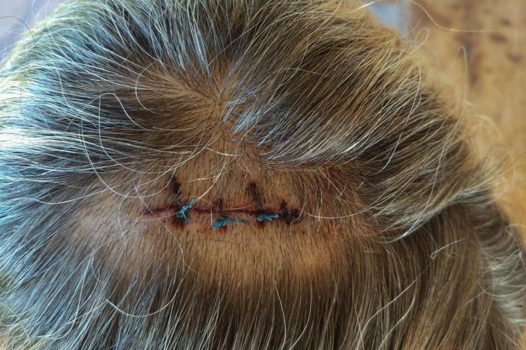 Imbi stitches